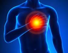 L'accident cardio-vasculaire chez le cycliste