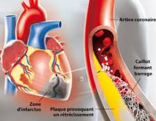 Infarctus du myocarde : première cause de mortalité chez la femme